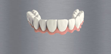 Teeth in a Day Image